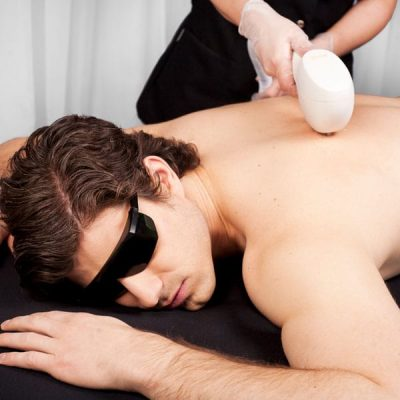 IPL-Hair-Removal-Newcastle