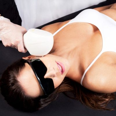 IPL-Photo Rejuvenation Newcastle